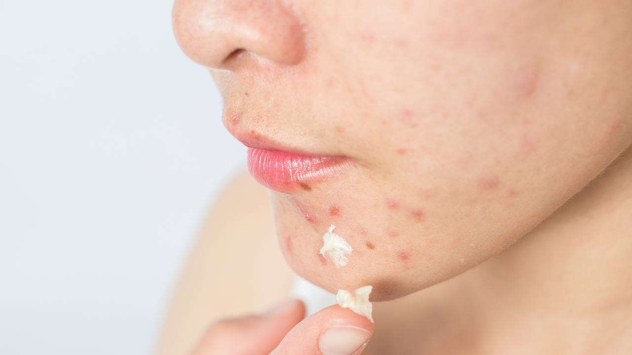 What Is Sulfur and Why Is It So Good for Your Skin